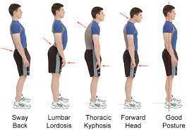 postural-assessment-img
